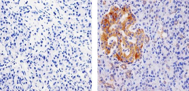 PDIA2 Antibody (710081)