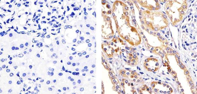 Phospho-p38 MAPK alpha (Thr180, Tyr182) Antibody (710088)