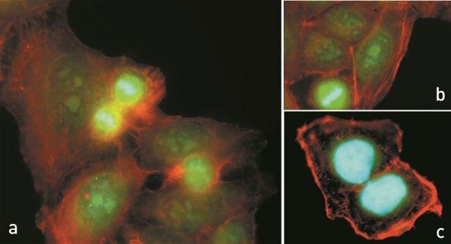 Phospho-p70 S6 Kinase pThr421+pSer424 Antibody (710108)