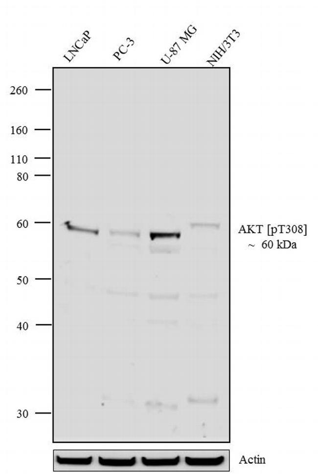 Phospho-AKT1 (Thr308) Antibody (710122) in Western Blot