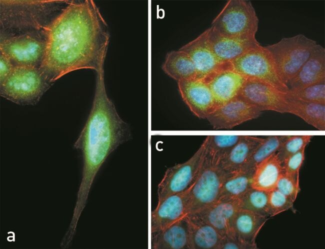 Phospho-AKT pThr308 Antibody (710122)