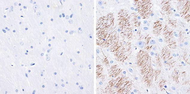 Phospho-Tau (Ser199) Antibody (710124) in Immunohistochemistry (Paraffin)
