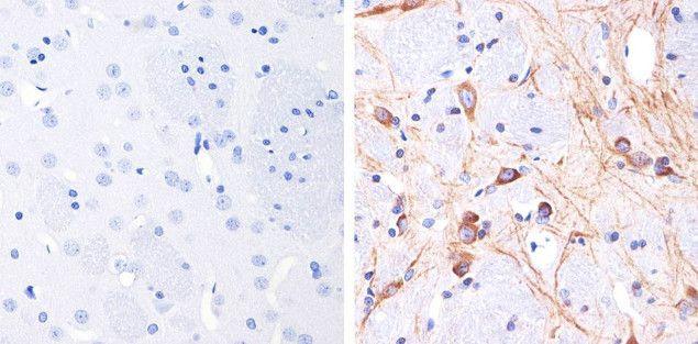 Phospho-Tau (Thr231) Antibody (710126) in Immunohistochemistry (Paraffin)