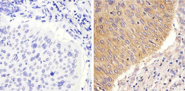 STAT2 Antibody (710135) in Immunohistochemistry (Paraffin)
