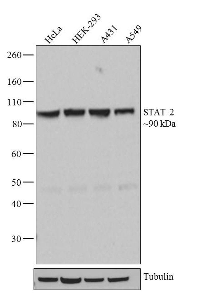 STAT2 Antibody (710135) in Western Blot