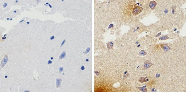 beta Amyloid Antibody (710174) in Immunohistochemistry (Paraffin)