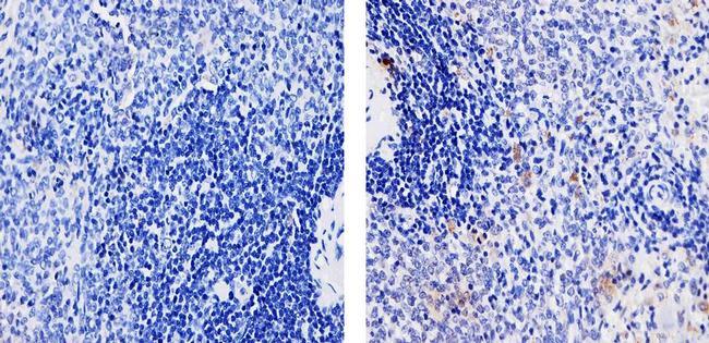 TLR4 Antibody (710185) in Immunohistochemistry (Paraffin)