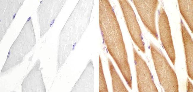 PI3KC3 Antibody (710194) in Immunohistochemistry (Paraffin)
