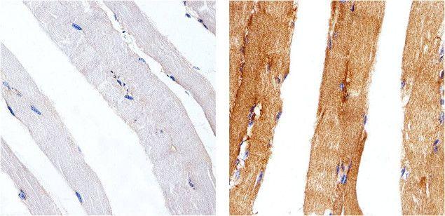 Metadherin Antibody (710202) in Immunohistochemistry (Paraffin)