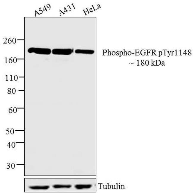Phospho-EGFR (Tyr1148) Antibody (710213) in Western Blot