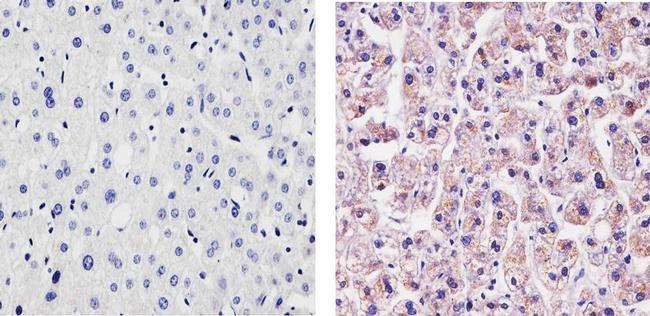 CRP Antibody (710269)