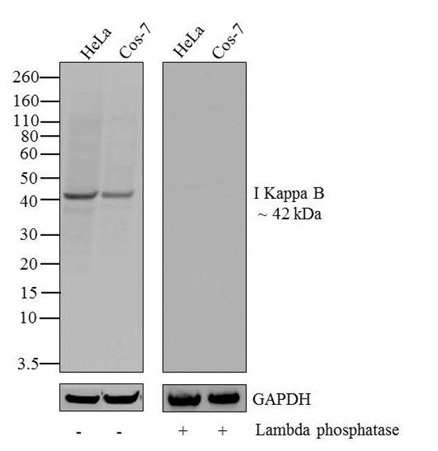 Phospho-IkB alpha (Ser32) Antibody (710295)