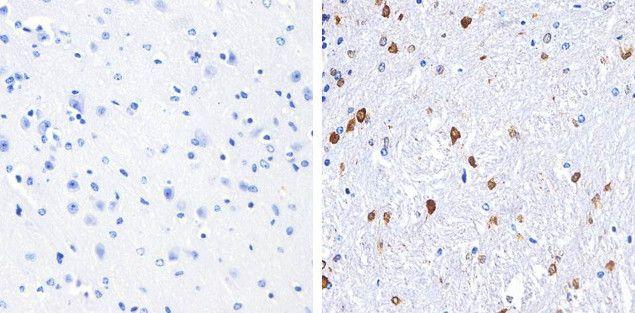 S100B Antibody (710363) in Immunohistochemistry (Paraffin)