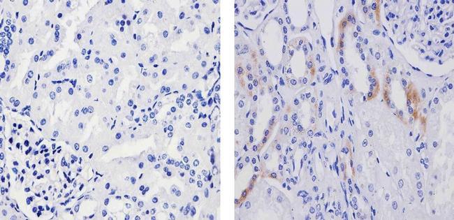 Phospho-TSC2 (Ser939) Antibody (710395) in Immunohistochemistry (Paraffin)
