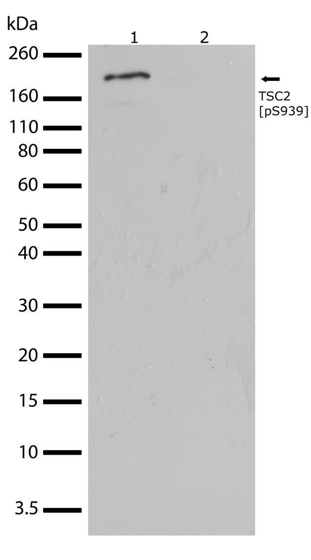 Phospho-TSC2 (Ser939) Antibody (710395) in Western Blot