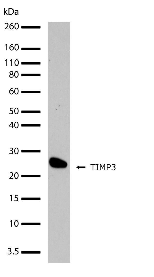 TIMP3 Antibody (710404) in Western Blot