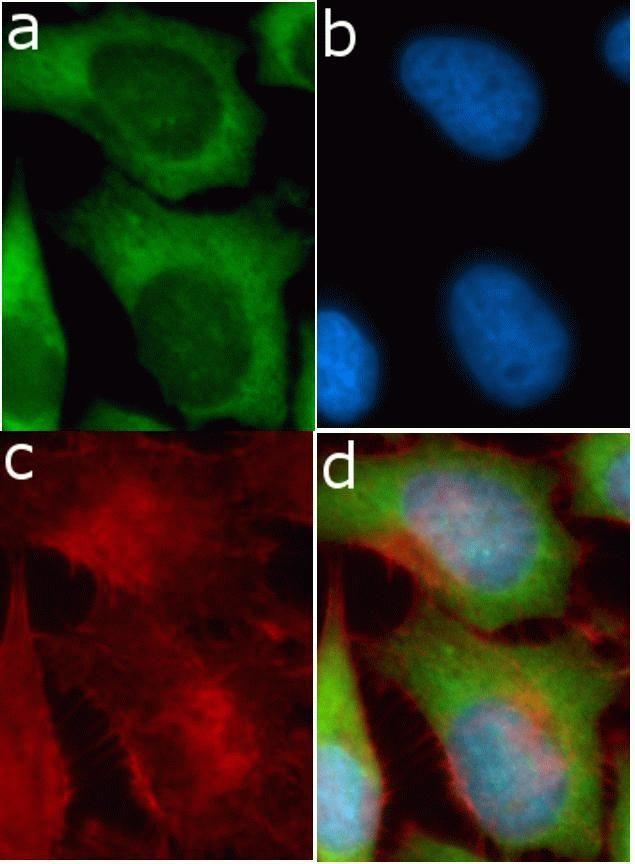LCN1 Antibody (710406)