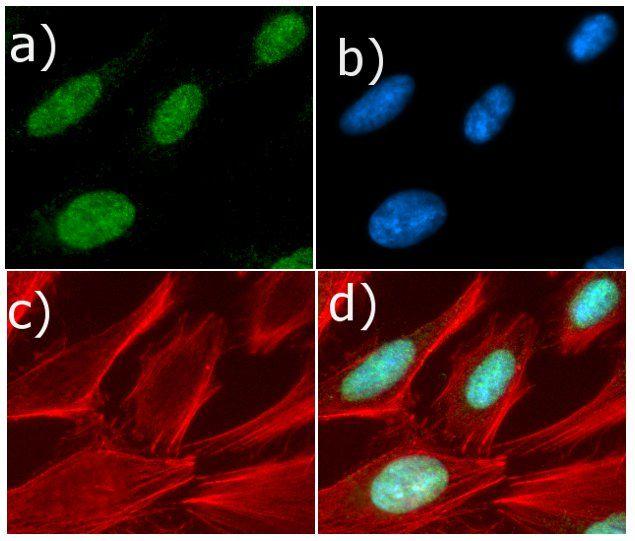 Cyclin D1 Antibody (710428) in Immunofluorescence