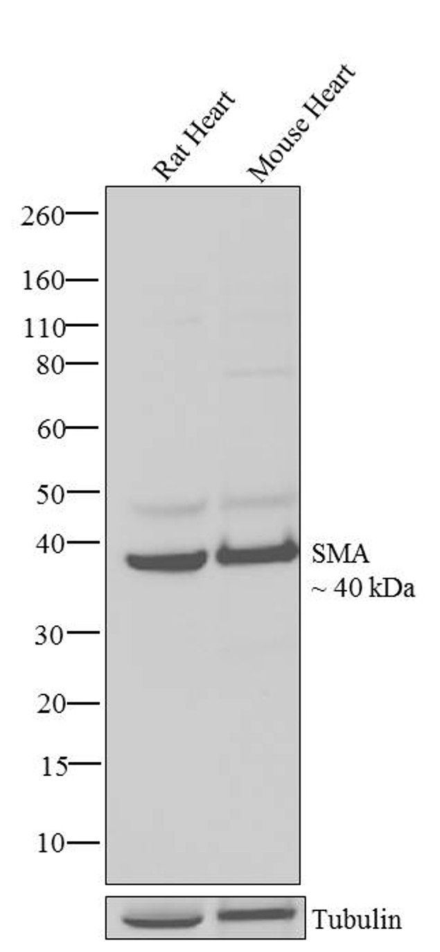 Smooth Muscle Actin Antibody (710487) in Western Blot