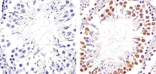 PIM1 Antibody (710504) in Immunohistochemistry (Paraffin)