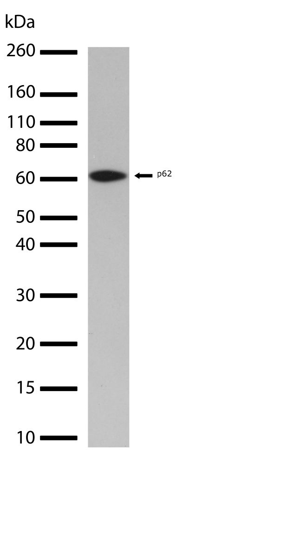 SQSTM1 Antibody (710539) in Western Blot
