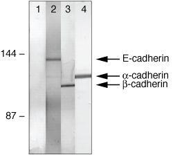 alpha Catenin Antibody (71-1200) in Immunoprecipitation
