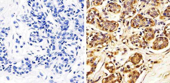 Annexin A1 Antibody (71-3400) in Immunohistochemistry (Paraffin)
