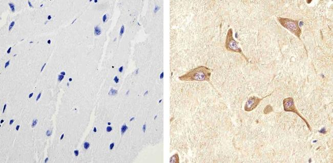 RAB11 Polyclonal Antibody