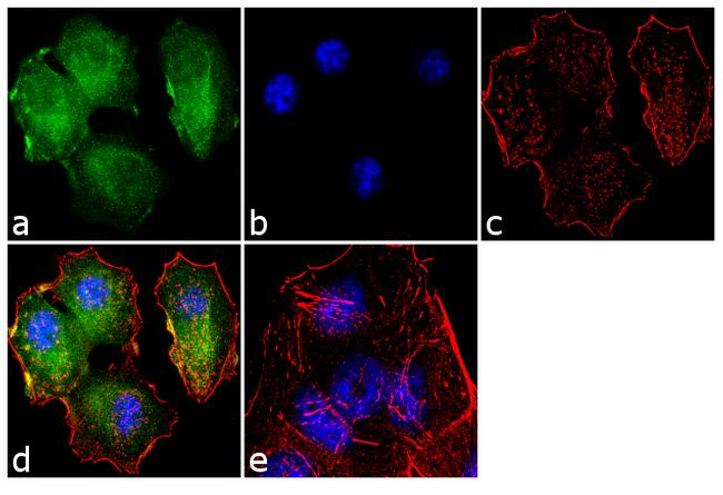 Tuberin / TSC2 Antibody (730014)