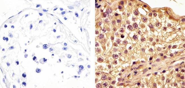 BRD3 Antibody (730024) in Immunohistochemistry (Paraffin)