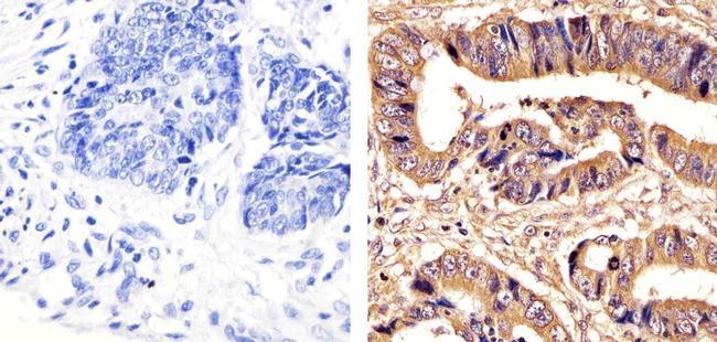 PRMT5 Antibody (730054) in Immunohistochemistry (Paraffin)