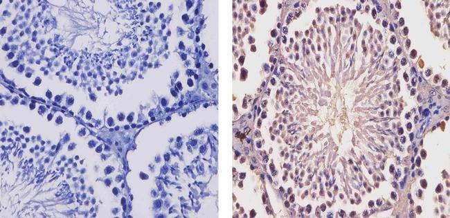 SMYD3 Antibody (730061) in Immunohistochemistry (Paraffin)