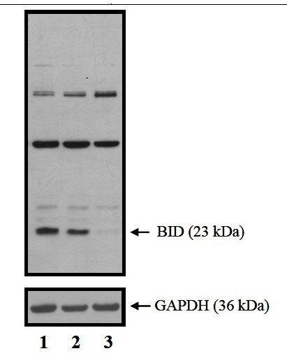 BID Antibody (82321)