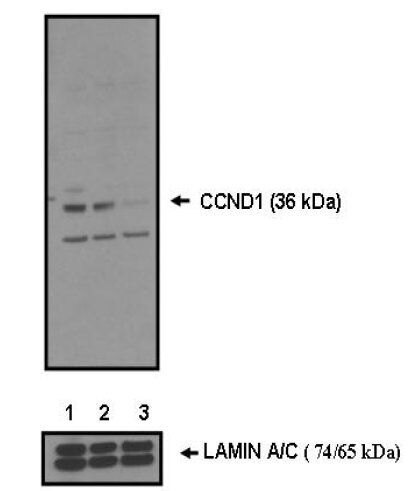Cyclin D1 Antibody (PA5-16777) in Western Blot