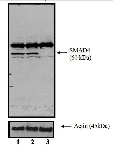SMAD4 Antibody (MA5-14300) in Western Blot