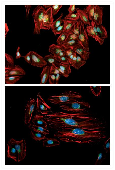 Mouse IgG (H+L) Cross-Adsorbed Secondary Antibody (A-11001) in Immunofluorescence