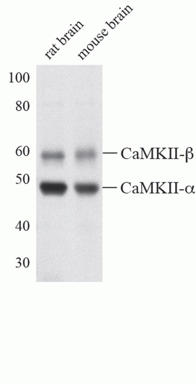 CaMKII alpha Antibody (A14012) in Western Blot