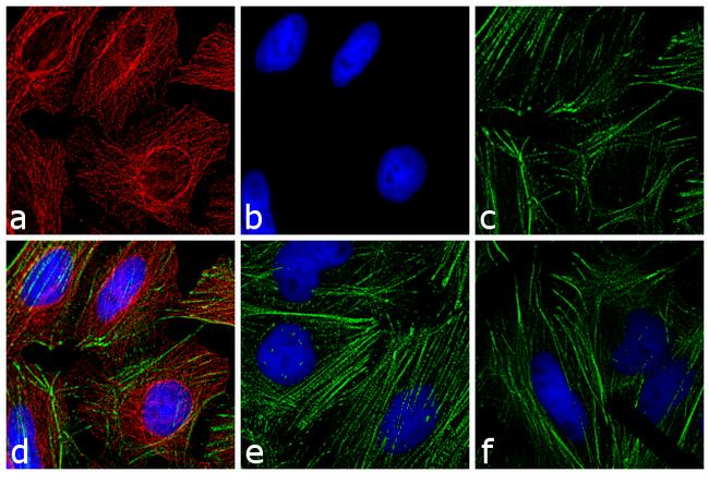 Mouse IgG Fc Cross-Adsorbed Secondary Antibody (A16095) in Immunofluorescence
