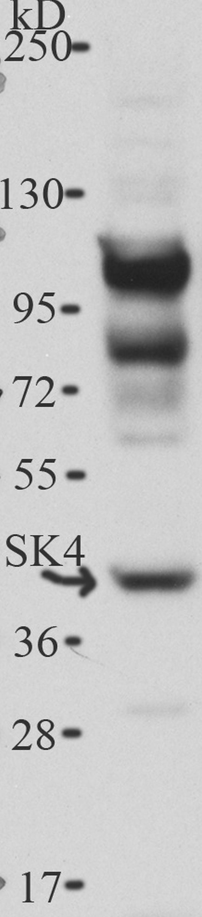 Rabbit IgG (H+L) Cross-Adsorbed Secondary Antibody (A16104)