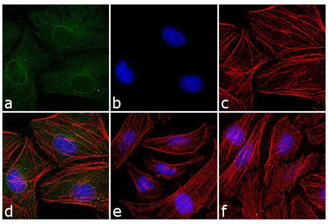 Mouse IgG (H+L) Cross-Adsorbed Secondary Antibody (A16167) in Immunofluorescence