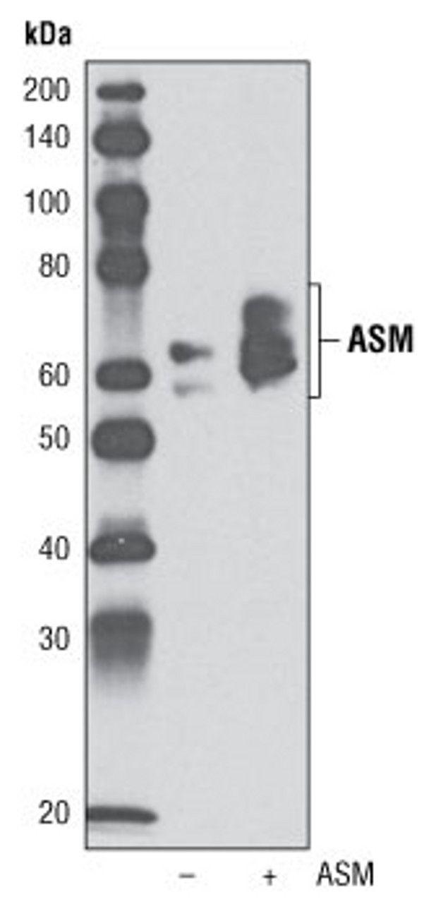 ASM Antibody (A16596) in Western Blot