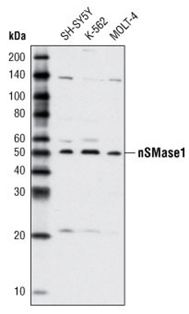 SMPD2 Antibody (A16615) in Western Blot
