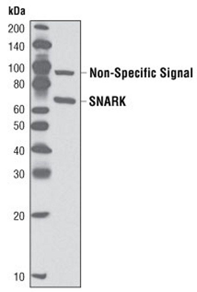 NUAK2 Antibody (A16623) in Western Blot