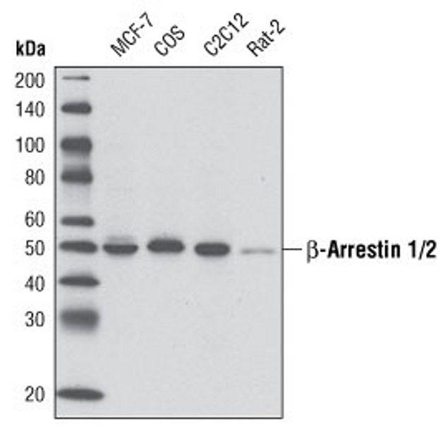 beta-Arrestin 1,2 Antibody (A16664)