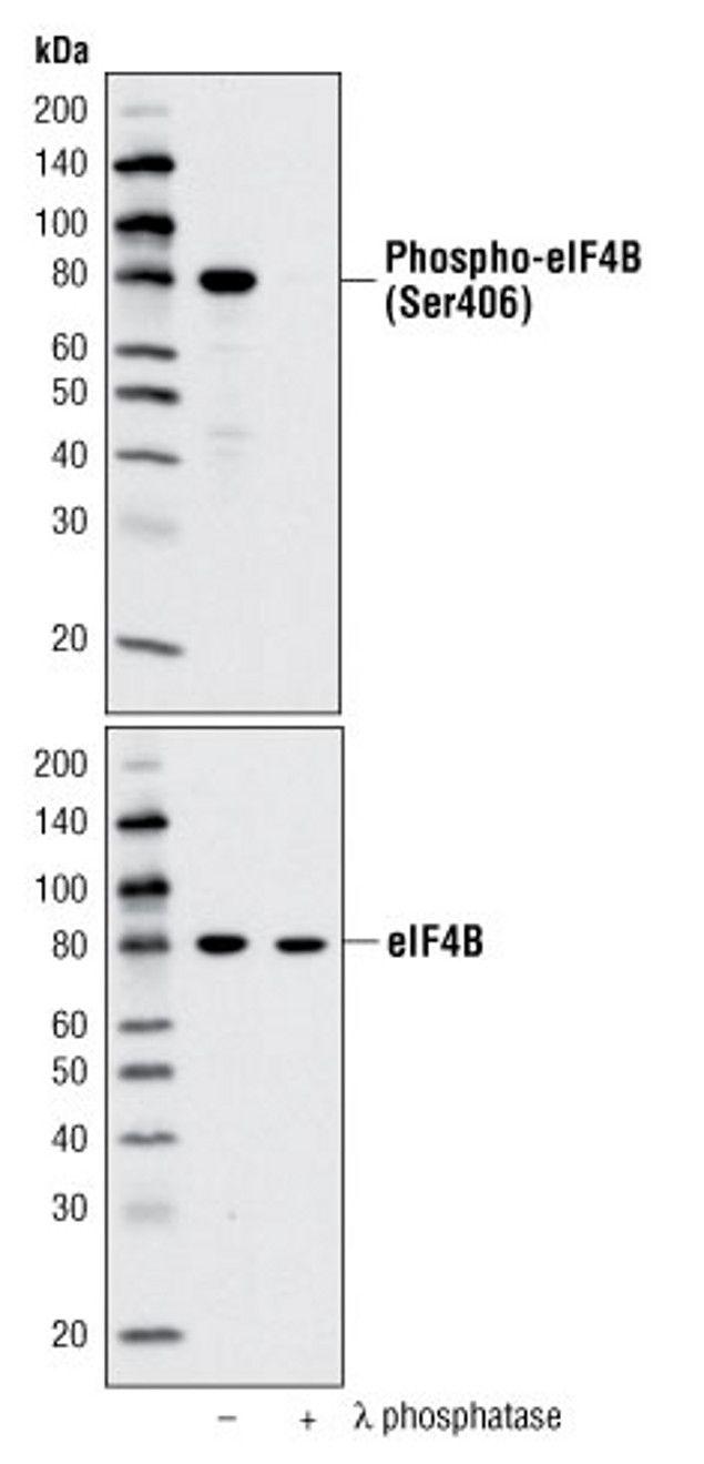 Phospho-eIF4B (Ser406) Antibody (A16689) in Western Blot