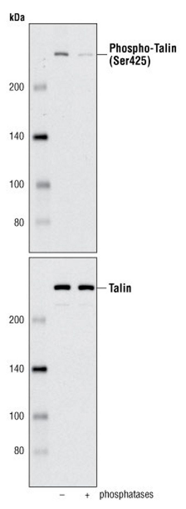 Phospho-Talin (Ser425) Antibody (A16690) in Western Blot