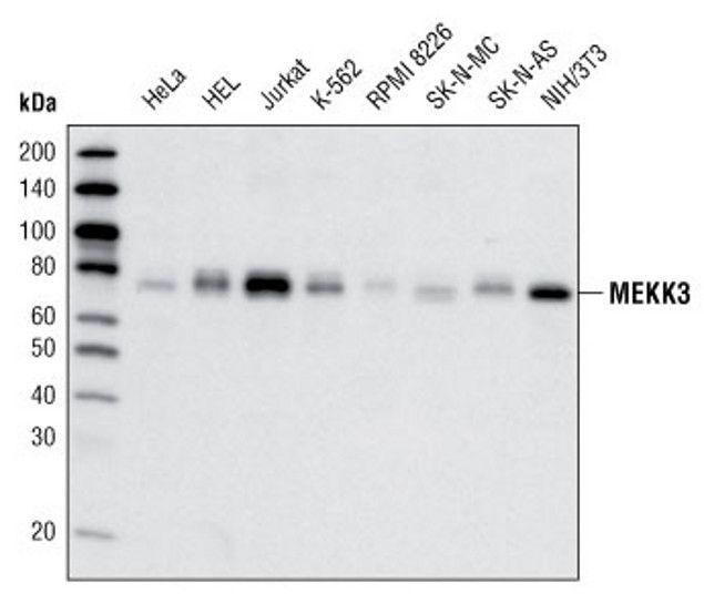 MEKK3 Antibody (A16697)