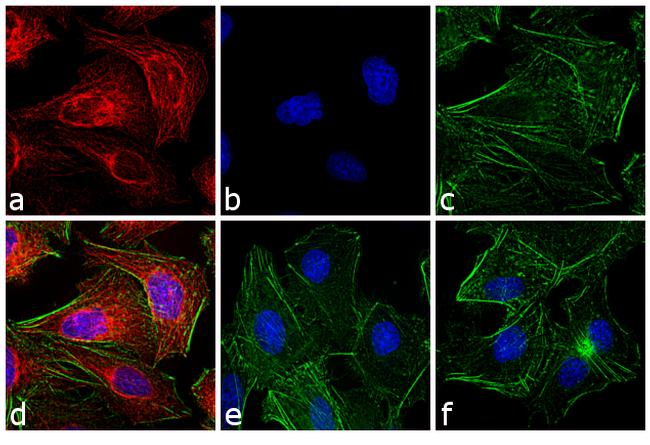 Rat IgG (H+L) Cross-Adsorbed Secondary Antibody (A-21094) in Immunofluorescence