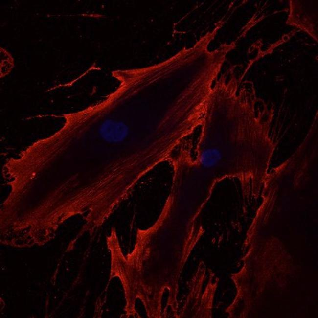 Mouse IgG (H+L) Cross-Adsorbed Secondary Antibody (A-21422) in Immunofluorescence