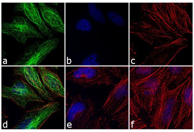 Rabbit IgG (H+L) Cross-Adsorbed Secondary Antibody (A-21441) in Immunofluorescence